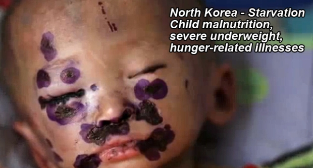 North Korea Servere Child Malnutrition