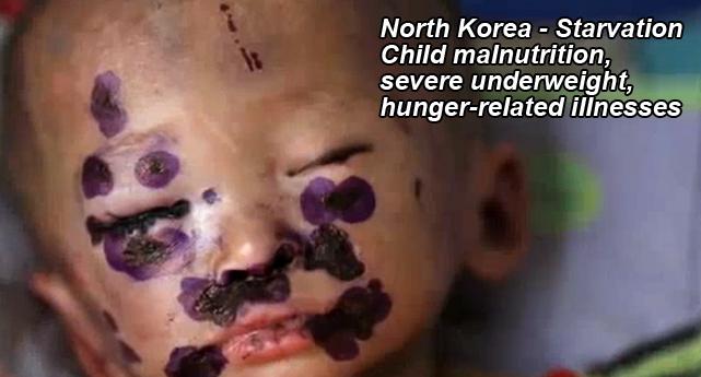 Image result for north korea torture