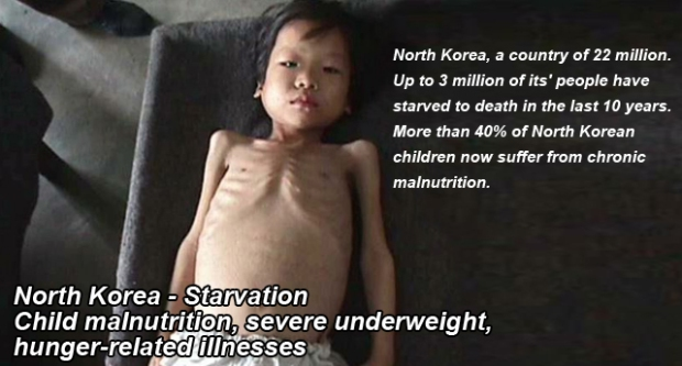North Korea children severe underweight