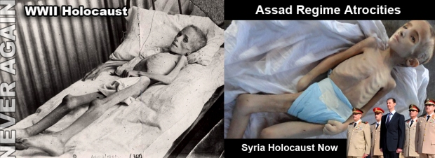 assad syria crimes child starving