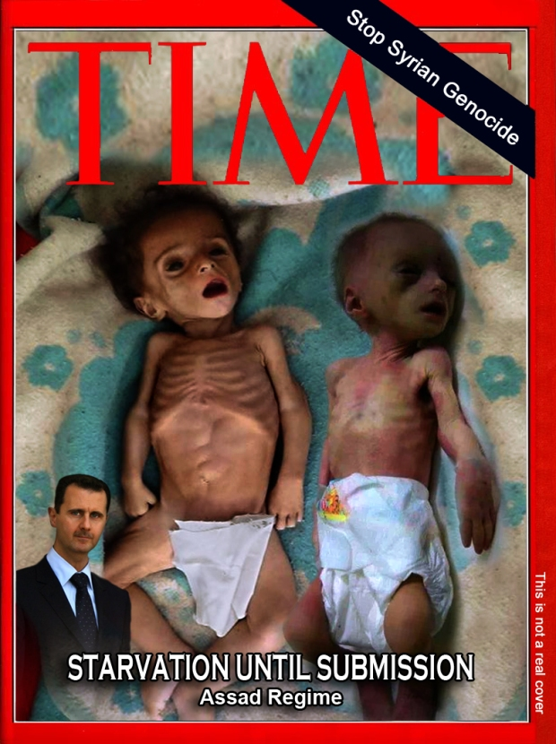 assad syria torture child hunger war die