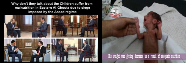 syria_assad_Ghouta_hungry_child_1
