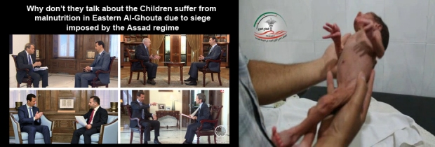 Syrian children are starving to death by Bashar al-Assad