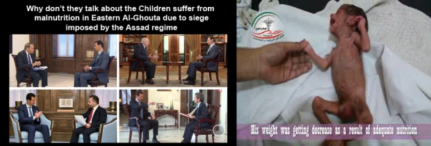 Syrian children are Suffering Of Eastern Al-Ghouta Children Under Siege by assad regime