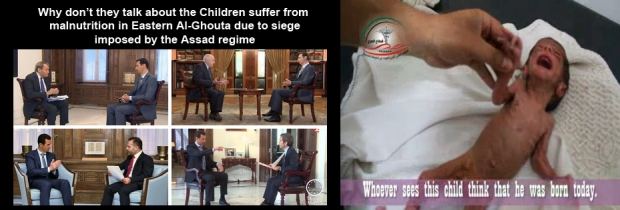 Suffering Of Eastern Al-Ghouta Children Under Siege by Syria Assad regime Bashar al-Assad
