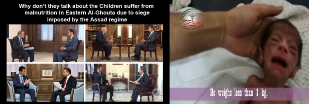 Syrian children are suffering starvation, besiege, bombing