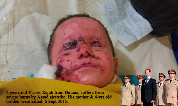 Assad Syria war children are the victim of the conflict